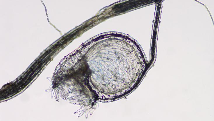 Lichtmikroskopisches Foto einer Fangblase von Utricularia