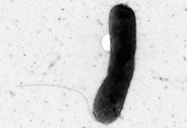 Microscopic black-and-white image of a bacterium