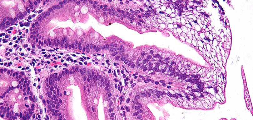 Eine Mikroaufnahme einer Zelle mit Bassen-Kornzweig-Syndrom, einer seltenen Krankheit.