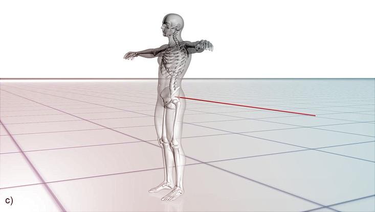 3D-Körpermodell des Verletzungsvorgangs