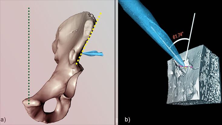 3D-Modell eines Beckenknochens