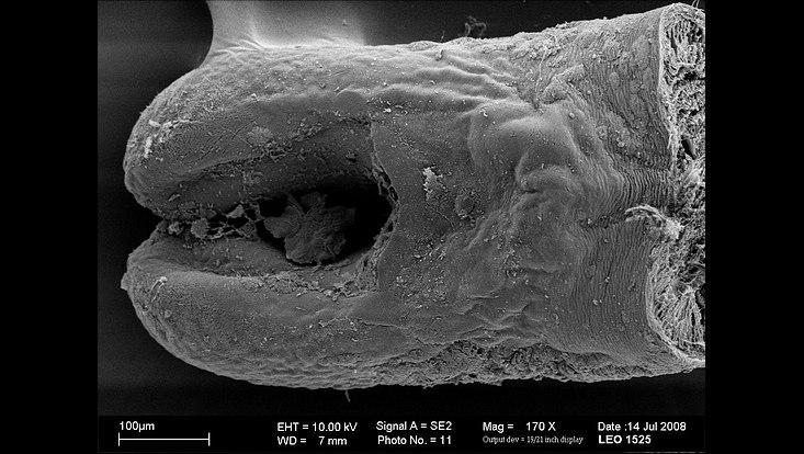 Mikroskop-Aufnahme: Gordius sp.